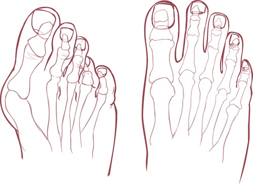 Vbočený palec